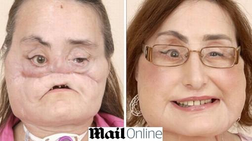 Curiosidades, Trasplante de rostro, Trasplantes, Connie Culp