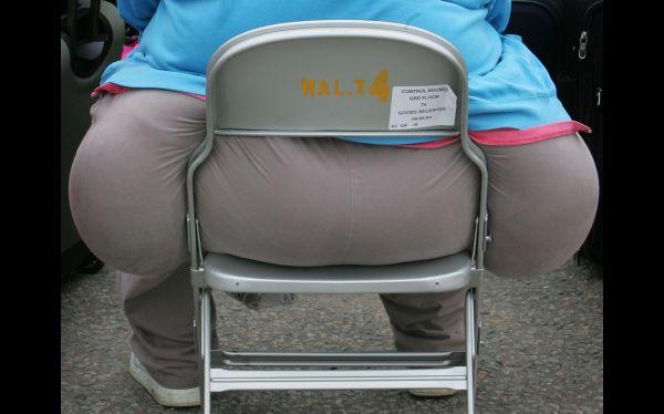 Obesidad,