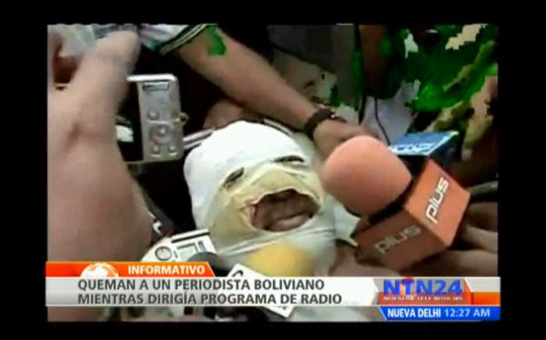 Bolivia: Periodista fue quemado con gasolina y político sería el autor intelectual